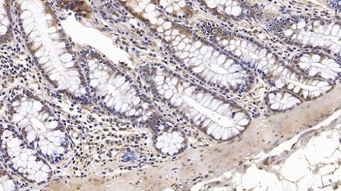 Immunohistochemistry (Formalin/PFA-fixed paraffin-embedded sections) - Anti-IGFBP4 antibody [C15] (ab239594)