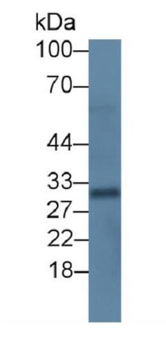 Western blot - Anti-RANKL antibody [C1] (ab239607)