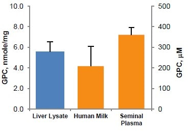 Determination of total GPC concentration in Liver lysate, Human Milk, and Seminal Fluid.