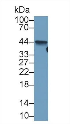 Western blot - Anti-Liver Arginase antibody [C1] (ab239731)