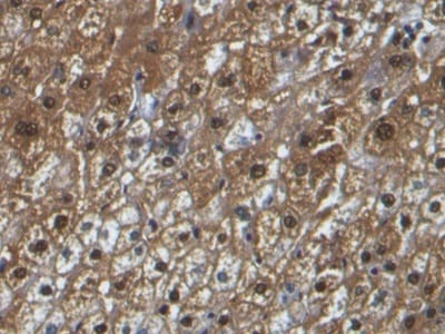 Immunohistochemistry (Formalin/PFA-fixed paraffin-embedded sections) - Anti-Liver Arginase antibody [C1] (ab239731)