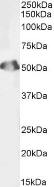 Western blot - Anti-SEPT6 antibody (Biotin) (ab239736)