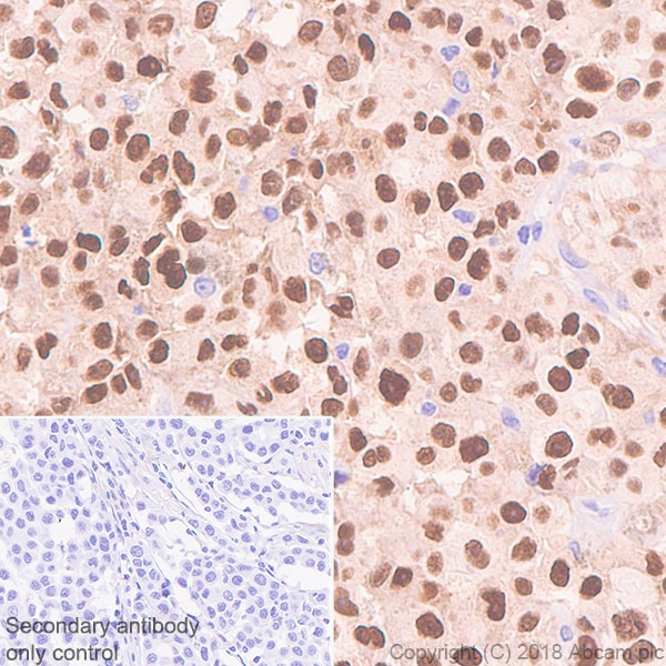 Immunohistochemistry (Formalin/PFA-fixed paraffin-embedded sections) - Anti-SOX10 antibody [SP275] - BSA and Azide free (ab239751)