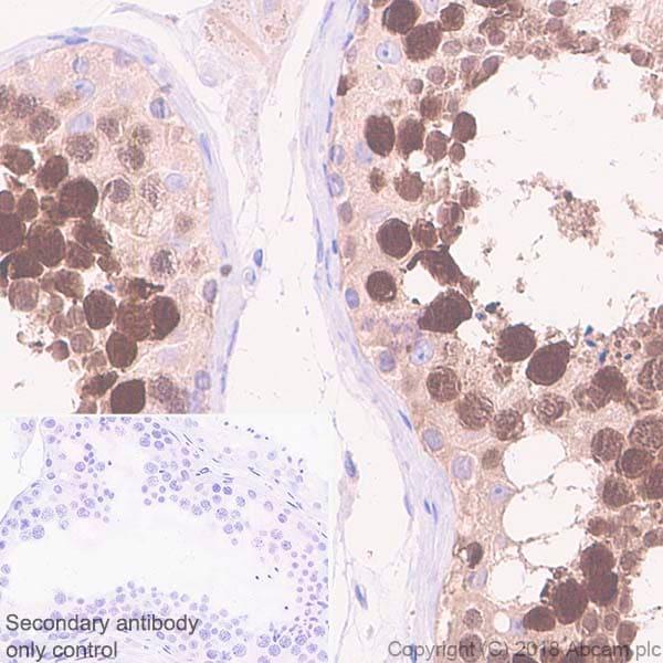Immunohistochemistry (Formalin/PFA-fixed paraffin-embedded sections) - Anti-PBK/SPK antibody [EPR21983] - BSA and Azide free (ab239760)