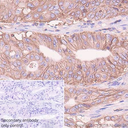 Immunohistochemistry (Formalin/PFA-fixed paraffin-embedded sections) - Anti-HLA Class 1 ABC antibody [EPR22172] - BSA and Azide free (ab239788)