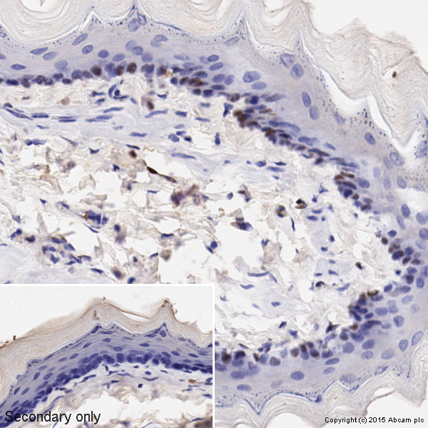Immunohistochemistry (Formalin/PFA-fixed paraffin-embedded sections) - Anti-Cyclin D1 antibody [SP4] - BSA and Azide free (ab239794)