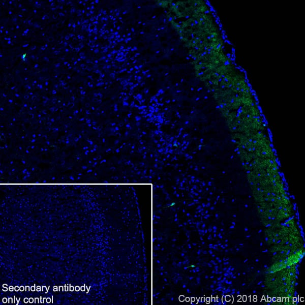 Immunohistochemistry (Frozen sections) - Anti-Calretinin antibody [SP13] - BSA and Azide free (ab239795)