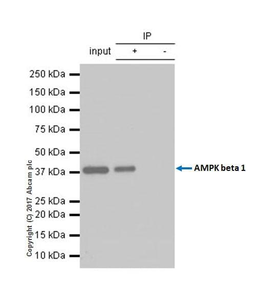 Immunoprecipitation - Anti-AMPK beta 1 antibody [Y367] - BSA and Azide free (ab239804)