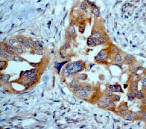 Immunohistochemistry (Formalin/PFA-fixed paraffin-embedded sections) - Anti-eIF5A antibody [EP526Y] - BSA and Azide free (ab239816)