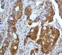 Immunohistochemistry (Formalin/PFA-fixed paraffin-embedded sections) - Anti-PKR antibody [Y117] - BSA and Azide free (ab239817)