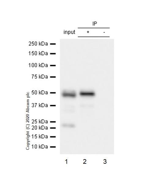 Immunoprecipitation - Anti-Chk1 antibody [E250] - BSA and Azide free (ab239821)