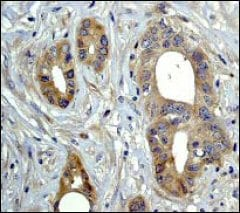 Immunohistochemistry (Formalin/PFA-fixed paraffin-embedded sections) - Anti-MAP3K4 antibody [EP551Y] - BSA and Azide free (ab239829)
