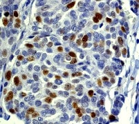 Immunohistochemistry (Formalin/PFA-fixed paraffin-embedded sections) - Anti-Cyclin E2 antibody [EP454Y] - BSA and Azide free (ab239833)