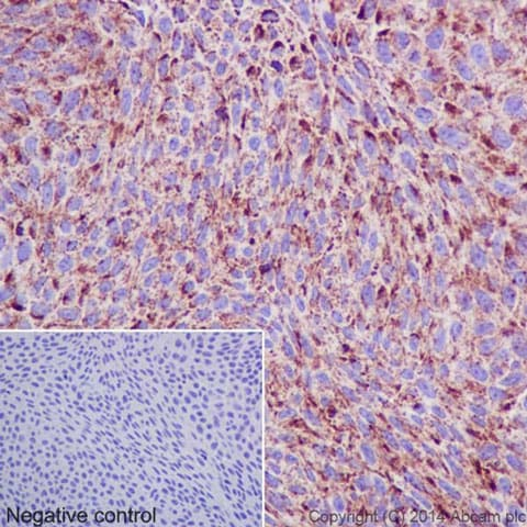 Immunohistochemistry (Formalin/PFA-fixed paraffin-embedded sections) - Anti-Hsp60 antibody [EP1006Y] - BSA and Azide free (ab239835)