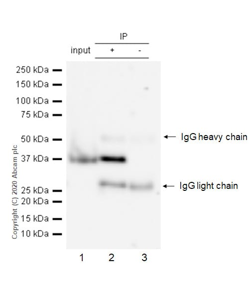 Immunoprecipitation - Anti-Aurora B antibody [EP1009Y] - BSA and Azide free (ab239837)