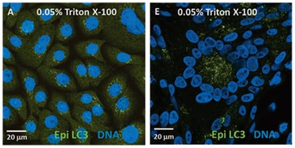 Immunocytochemistry/ Immunofluorescence - Anti-MAP1LC3A antibody [EP1983Y] - BSA and Azide free (ab239849)