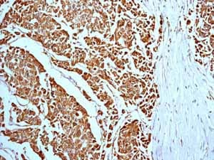 Immunohistochemistry (Formalin/PFA-fixed paraffin-embedded sections) - Anti-Prohibitin antibody [EP2803Y] - BSA and Azide free (ab239865)