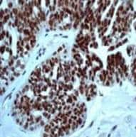 Immunohistochemistry (Formalin/PFA-fixed paraffin-embedded sections) - Anti-p53 (phospho S46) antibody [EP42Y] - BSA and Azide free (ab239880)