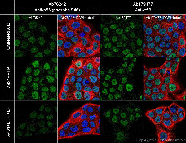 Immunocytochemistry/ Immunofluorescence - Anti-p53 (phospho S46) antibody [EP42Y] - BSA and Azide free (ab239880)