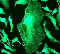Immunocytochemistry/ Immunofluorescence - Anti-Filamin A antibody [EP2405Y] - BSA and Azide free (ab239881)