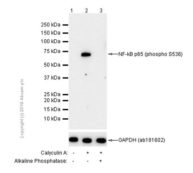Western blot - Anti-NF-kB p65 (phospho S536) antibody [EP2294Y] - BSA and Azide free (ab239882)