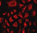 Immunocytochemistry/ Immunofluorescence - Anti-Integrin linked ILK antibody [EPR1592] - BSA and Azide free (ab239884)