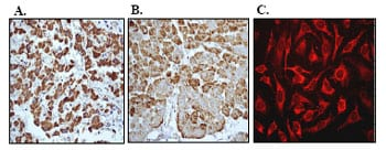 Immunohistochemistry (Formalin/PFA-fixed paraffin-embedded sections) - Anti-MTCO2 antibody [EPR3314] - BSA and Azide free (ab239889)