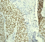 Immunohistochemistry (Formalin/PFA-fixed paraffin-embedded sections) - Anti-RPA70 antibody [EPR3472] - BSA and Azide free (ab239890)