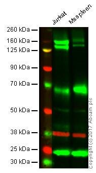Western blot - Anti-Integrin alpha 4/CD49D antibody [EPR1355Y] - BSA and Azide free (ab239898)