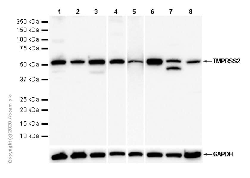 Western blot - Anti-TMPRSS2 antibody [EPR3861] - BSA and Azide free (ab239905)
