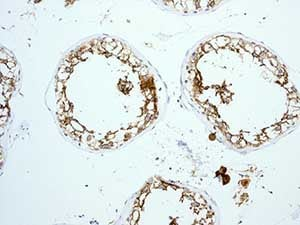 Immunohistochemistry (Formalin/PFA-fixed paraffin-embedded sections) - Anti-ACE2 antibody [EPR4435(2)] - BSA and Azide free (ab239924)