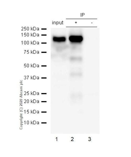 Immunoprecipitation - Anti-ACE2 antibody [EPR4435(2)] - BSA and Azide free (ab239924)