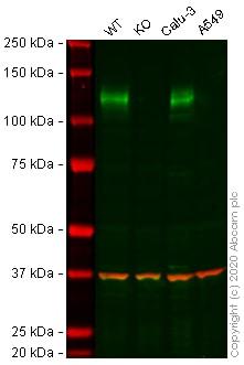 Western blot - Anti-ACE2 antibody [EPR4435(2)] - BSA and Azide free (ab239924)