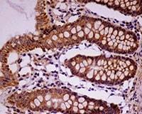 Immunohistochemistry (Formalin/PFA-fixed paraffin-embedded sections) - Anti-ALDH2 antibody [EPR4493] - BSA and Azide free (ab239925)