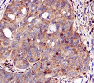 Immunohistochemistry (Formalin/PFA-fixed paraffin-embedded sections) - Anti-STAT1 antibody [EPR4407] - BSA and Azide free (ab239968)