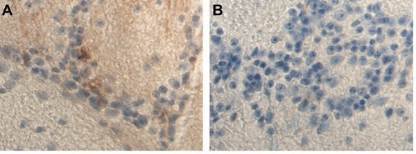 Immunohistochemistry (Formalin/PFA-fixed paraffin-embedded sections) - Anti-Ferritin Light Chain antibody [EPR5260] - BSA and Azide free (ab239971)