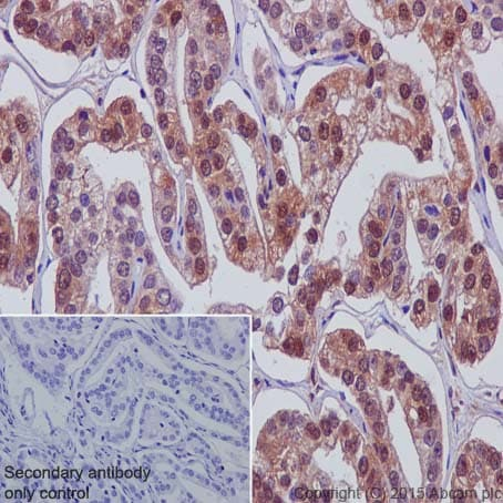 Immunohistochemistry (Formalin/PFA-fixed paraffin-embedded sections) - Anti-Galectin 8/Gal-8 antibody [EPR4857] - BSA and Azide free (ab239983)