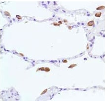 Immunohistochemistry (Formalin/PFA-fixed paraffin-embedded sections) - Anti-iNOS antibody [SP126] - BSA and Azide free (ab239990)