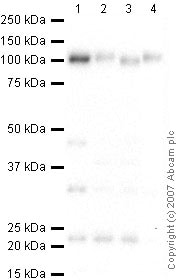Western blot - Anti-LAMP1 antibody - Lysosome Marker (ab24170)