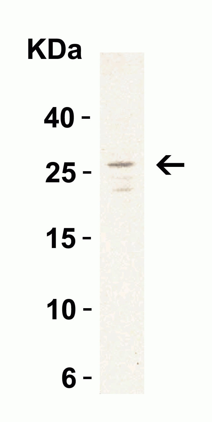 Western blot - Anti-MD2 antibody (ab24182)