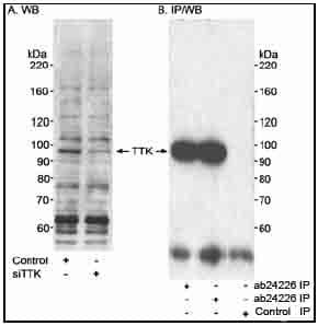 Western blot - Anti-TTK/Mps1 antibody (ab24226)