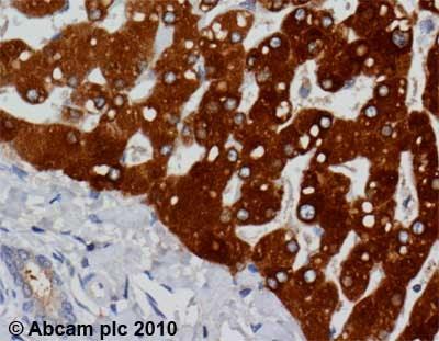 Immunohistochemistry (Formalin/PFA-fixed paraffin-embedded sections) - Anti-PON1 antibody [17A12] (ab24261)