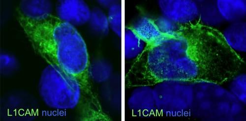 Immunocytochemistry/ Immunofluorescence - Anti-L1CAM  antibody [2C2] (ab24345)