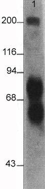Western blot - Anti-L1CAM  antibody [2C2] (ab24345)