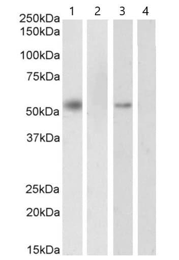 Western blot - Anti-Retinoid X Receptor alpha/RXRA antibody (ab24363)