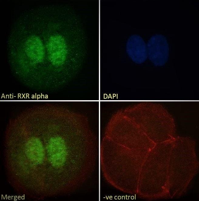 Immunocytochemistry - Anti-Retinoid X Receptor alpha/RXRA antibody (ab24363)