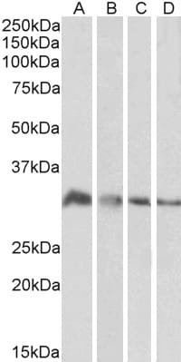 Western blot - Anti-EFHD2/SWS1 antibody (ab24368)