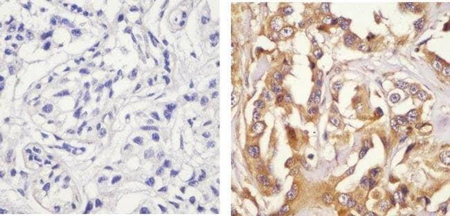 Immunohistochemistry (Formalin/PFA-fixed paraffin-embedded sections) - Anti-Paxillin (phospho S126) antibody (ab24402)