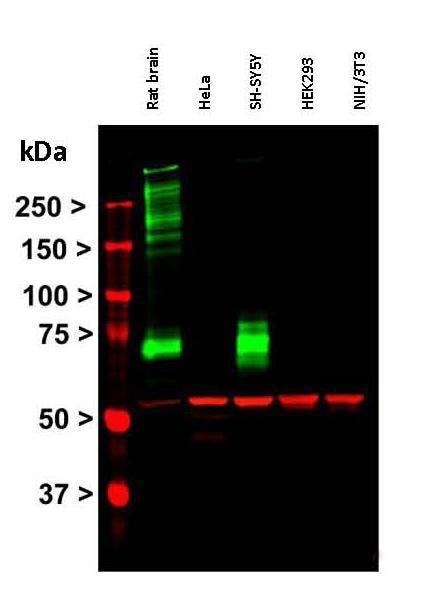 抗波形蛋白免疫印迹
