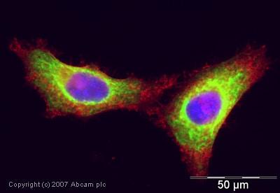 Immunocytochemistry/ Immunofluorescence - Anti-Cytokeratin 18 antibody (ab24561)